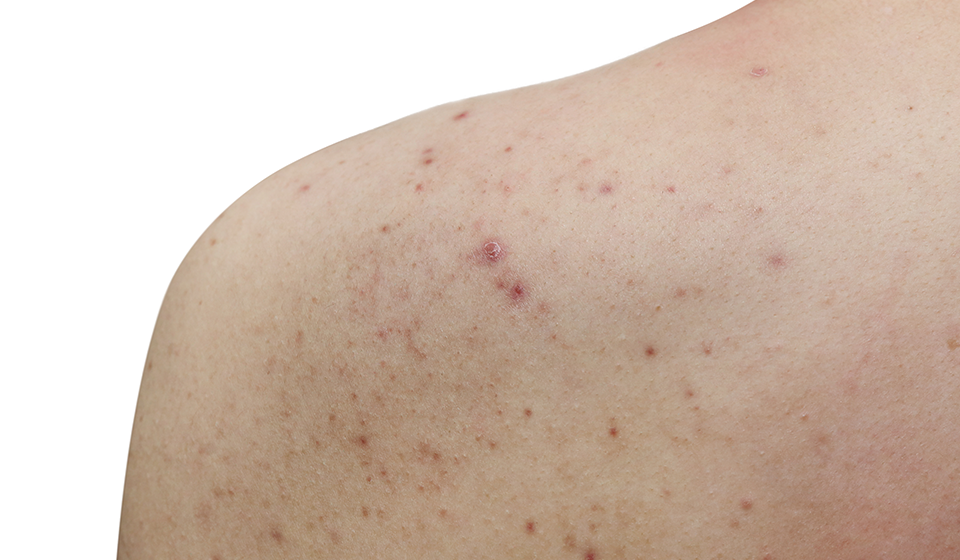 Skin Conditions